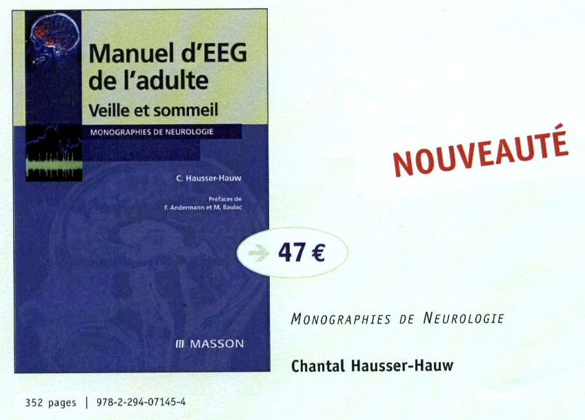Manuel d'EEG de l'adulte