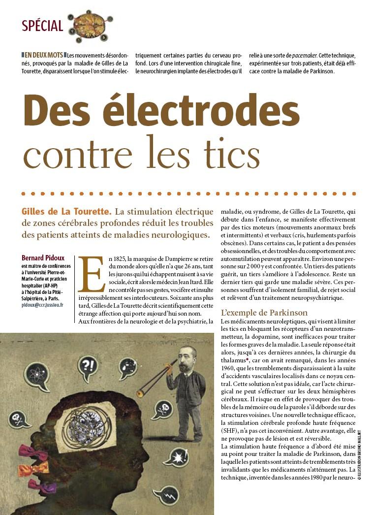 Des électrodes contre les tics